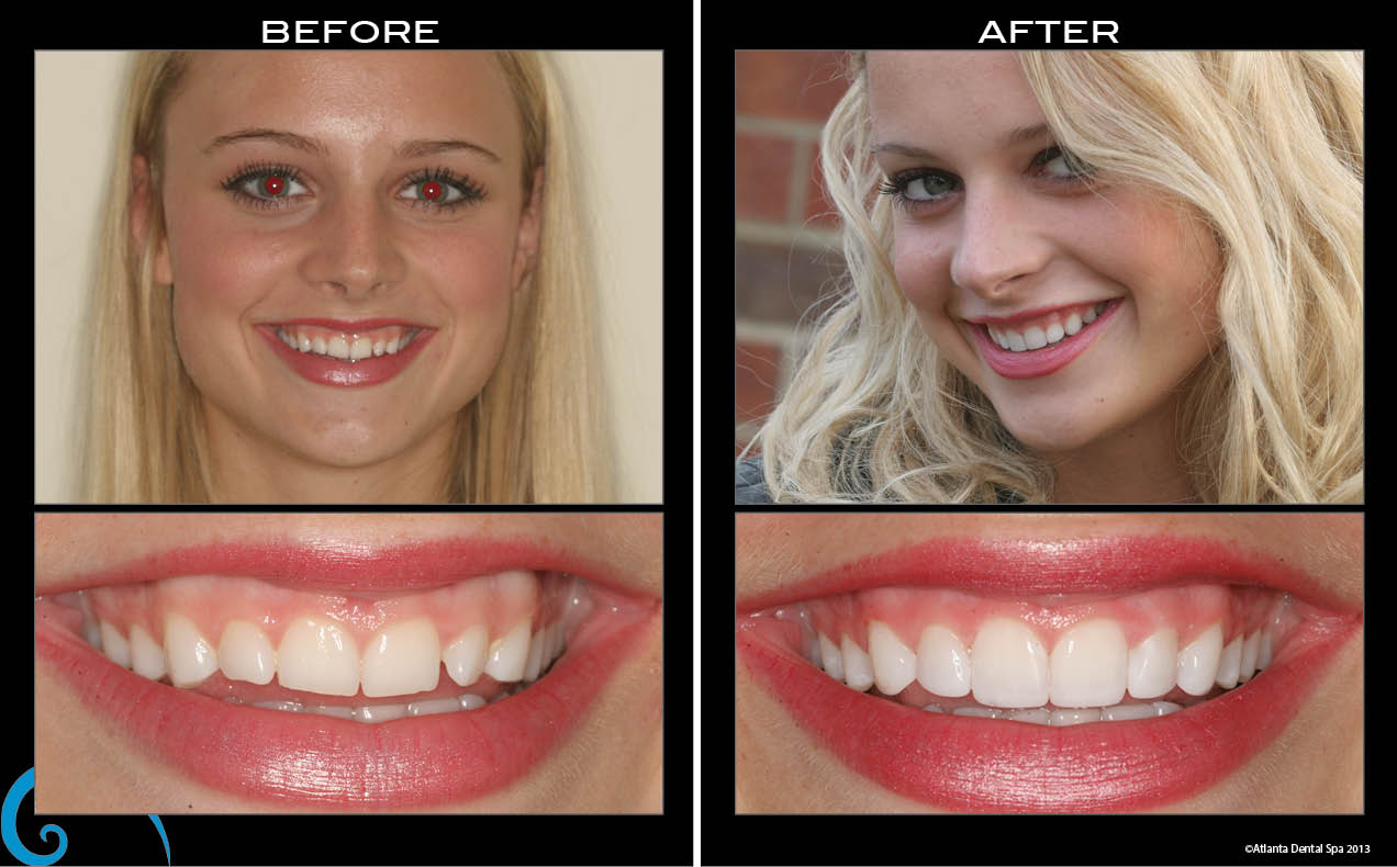 cosmetic bonding dr sid solomon dds